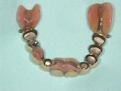 当院の部分入れ歯