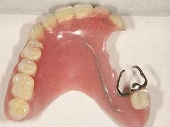 コーヌスクローネ義歯すれ違い咬合の写真