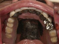 コーヌスクローネ義歯の写真