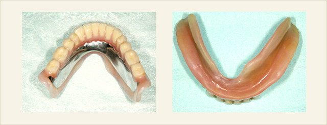 コンフォート総義歯02(5年経過症例)