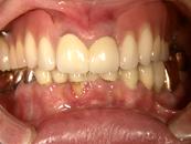 インプラント併用義歯02