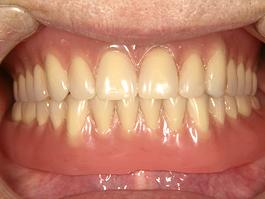 インプラントマグネット義歯01
