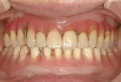 インプラントマグネット義歯02 初診時、他院で製作したもの