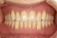 インプラントマグネット義歯02 今回、当院で製作したもの