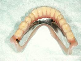 インプラントマグネット義歯02