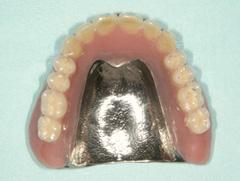インプラントマグネット義歯02 今回、当院で製作したもの(※チタン床使用)