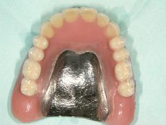 粘膜調整義歯の写真
