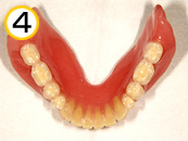 コンフォート総義歯01(装着後6年症例)