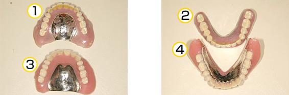 粘膜調整義歯症例の写真