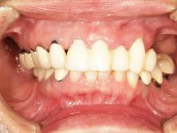 総義歯の写真