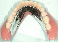 噛み締められるコンフォート義歯
