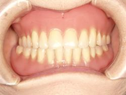コンフォート義歯の写真
