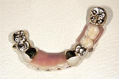 当院のコーヌスクローネ義歯